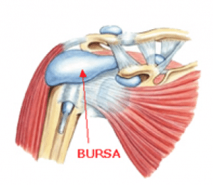 what is bursitis?