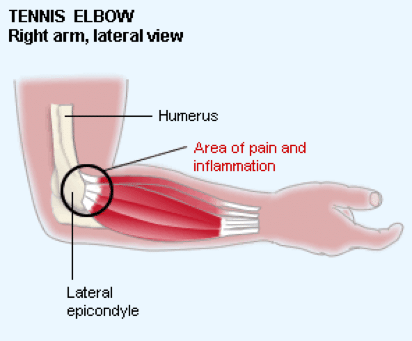 how to avoid tennis elbow