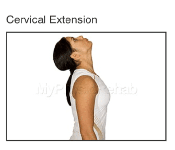 cervical extension for whiplash treatment