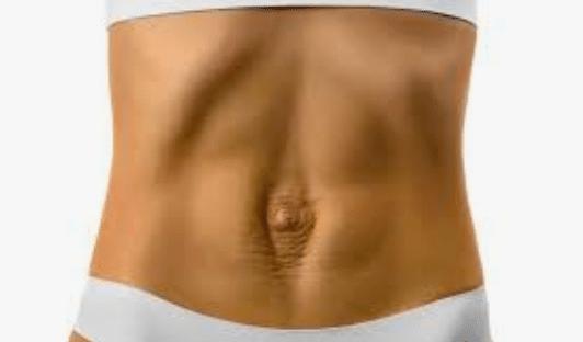 Abdominal Separation: Treating Abdominal Separation After Pregnancy