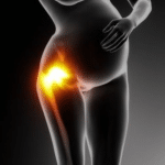 lateral hip pain in pregnancy